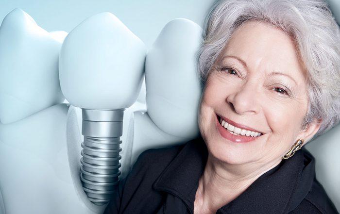 Seu sorriso está comprometido? Saiba como a implantodontia pode te ajudar - Implar